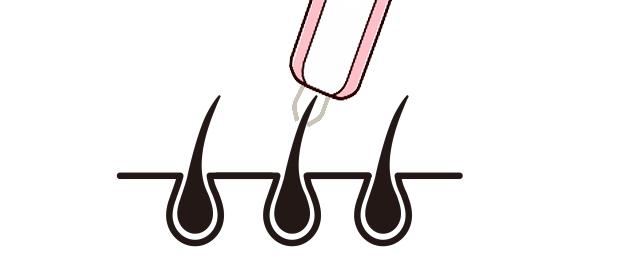 後悔しない「家庭用脱毛器」の選び方とは?人気の高い種類と特徴は?4