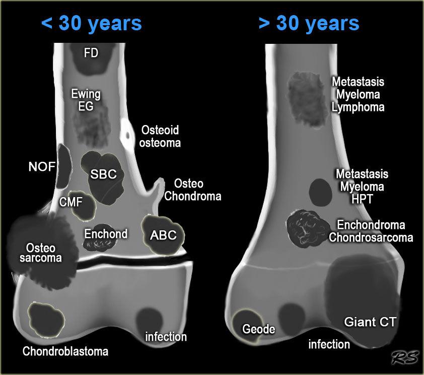 a509797919f47f_TEK-bone-tumor3.jpg