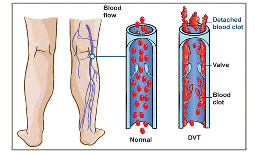 deep-vein-thrombosis.png