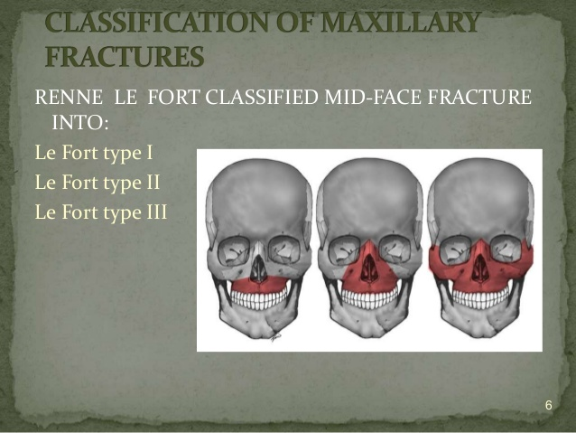 midfacial-fractures-oral-surgery-fx-6-638.jpg