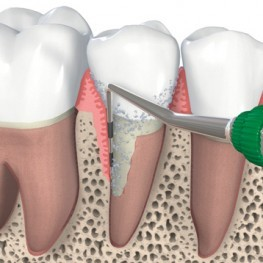 periodontics-263x263.jpg