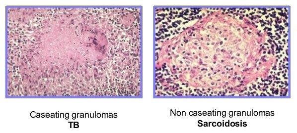 tb-vs-sarcoidosis.jpg