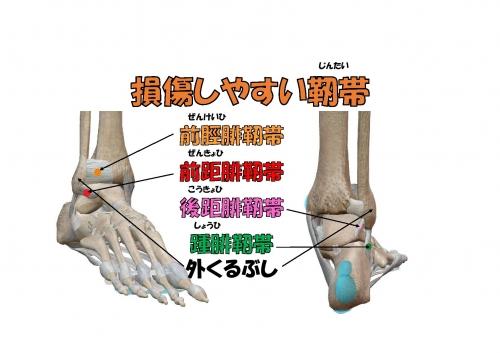足首の捻挫06