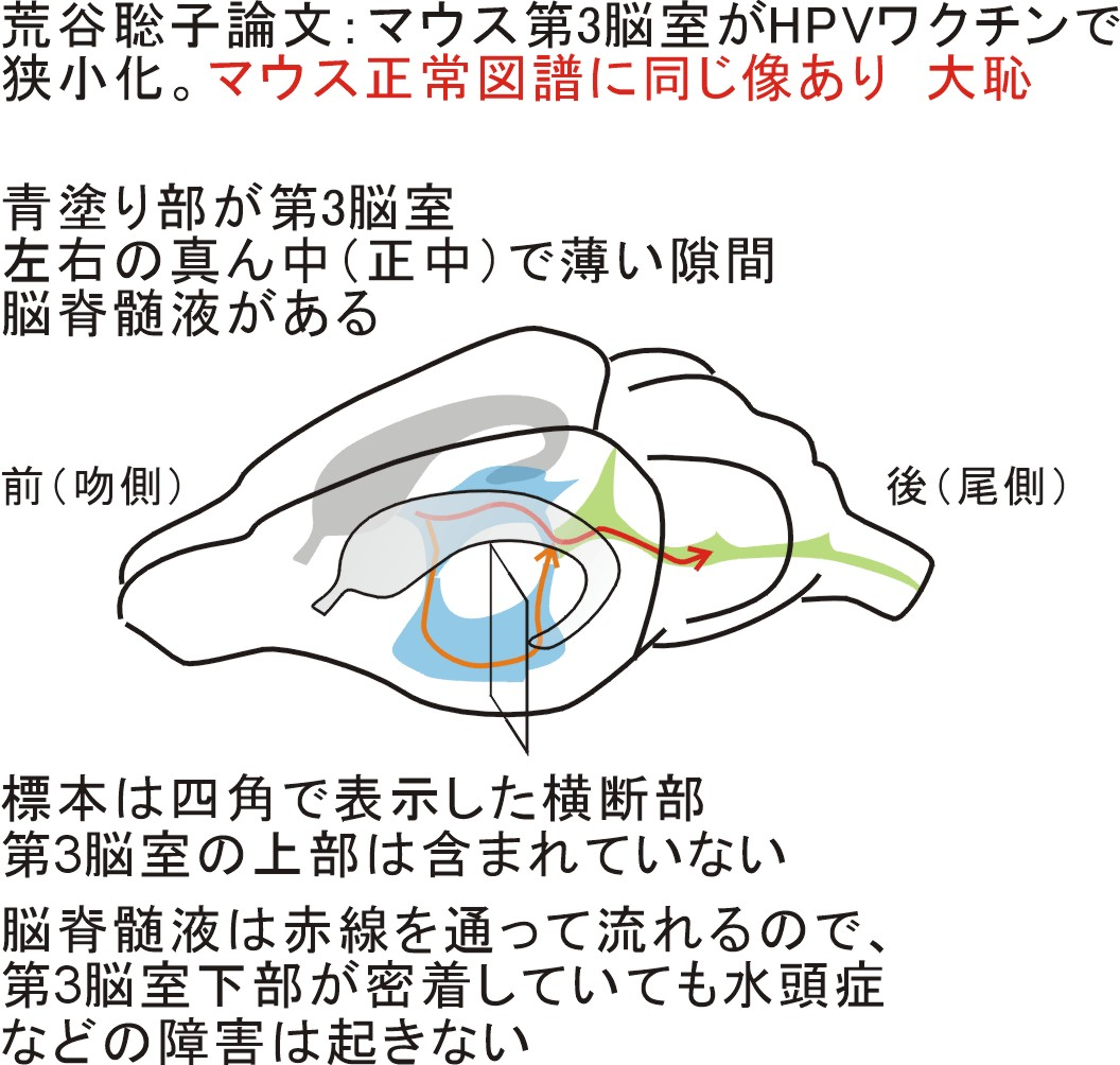 第3脳室説明2